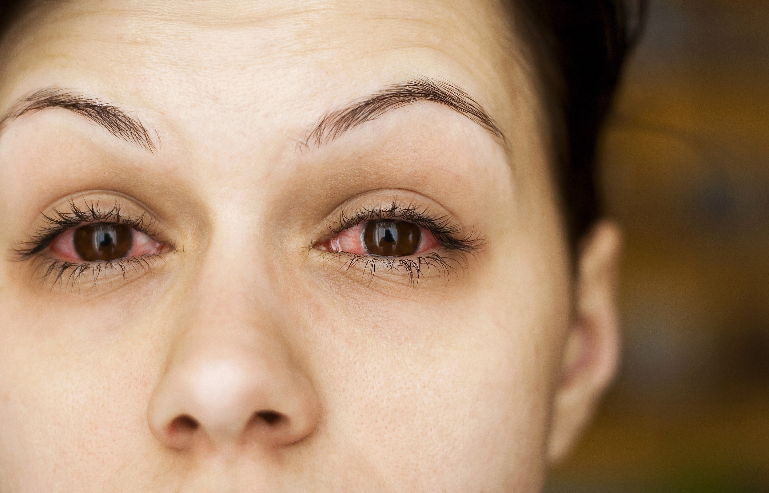 Watch Allergy Relief: Soothing Swollen Eyes video