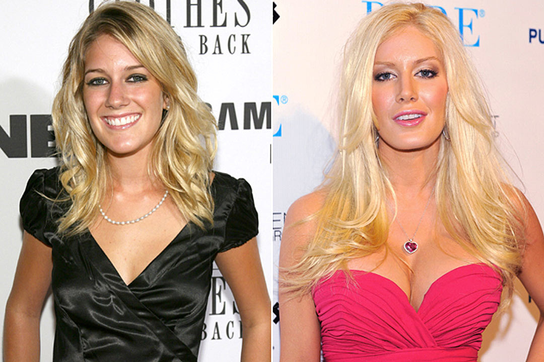 Famous people before and after surgery agree, very