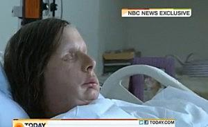 Chimp Attack Victim Reveals New Face Transplant [VIDEO]