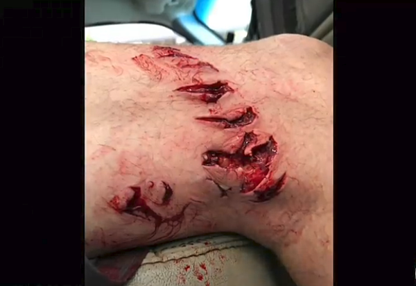 texas man attacked by shark off crystal beach near galveston