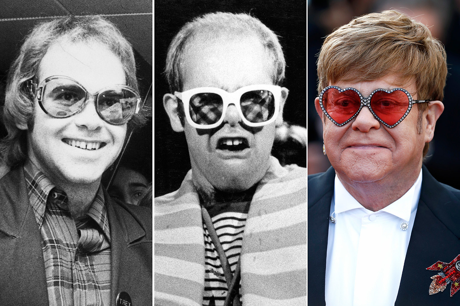 So What's the Deal With Elton John's Hair?