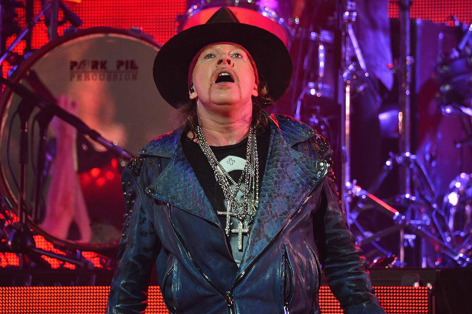 Axl Rose Was 'Throwing Up' During Guns N' Roses' Chicago Concert