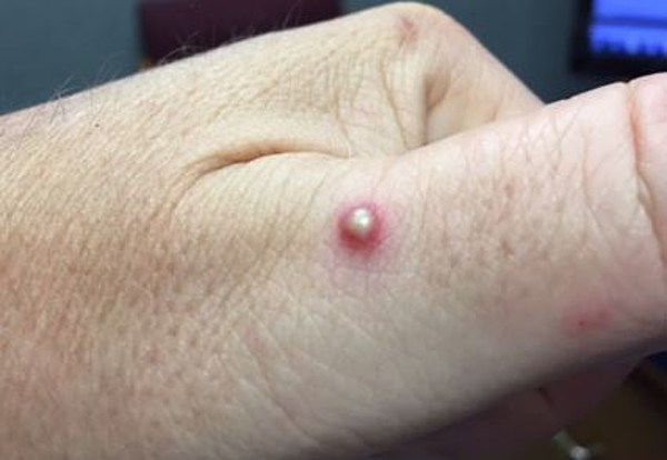 The Ant Bite - To Pop Or Not Pop, That Is The Question