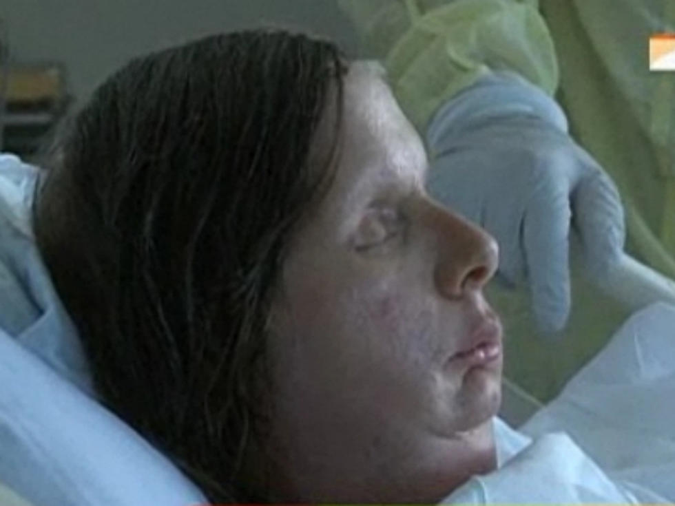 Chimp Attack Victim Charla Nash Reveals Her New Face on