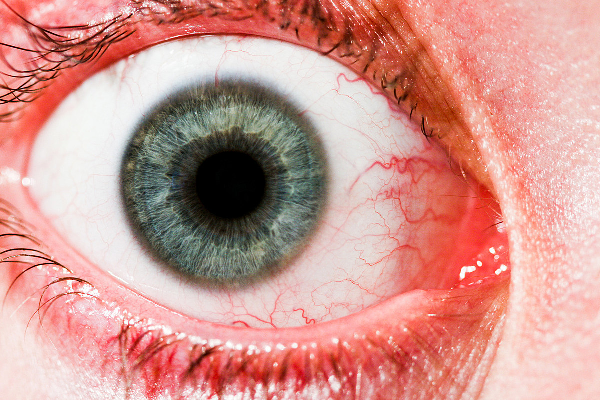 Seeing an Increase in Eye Floaters? See Your Eye Doctor