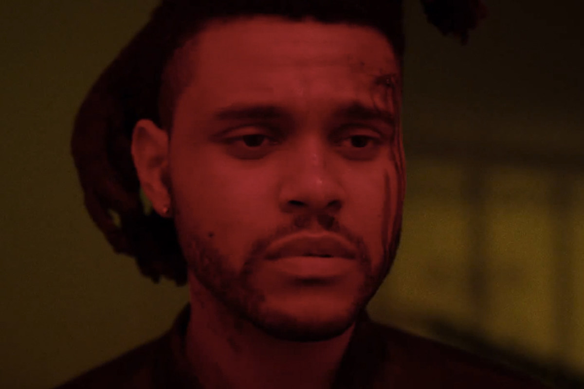 The Weeknd Gets Injured in Car Accident ...