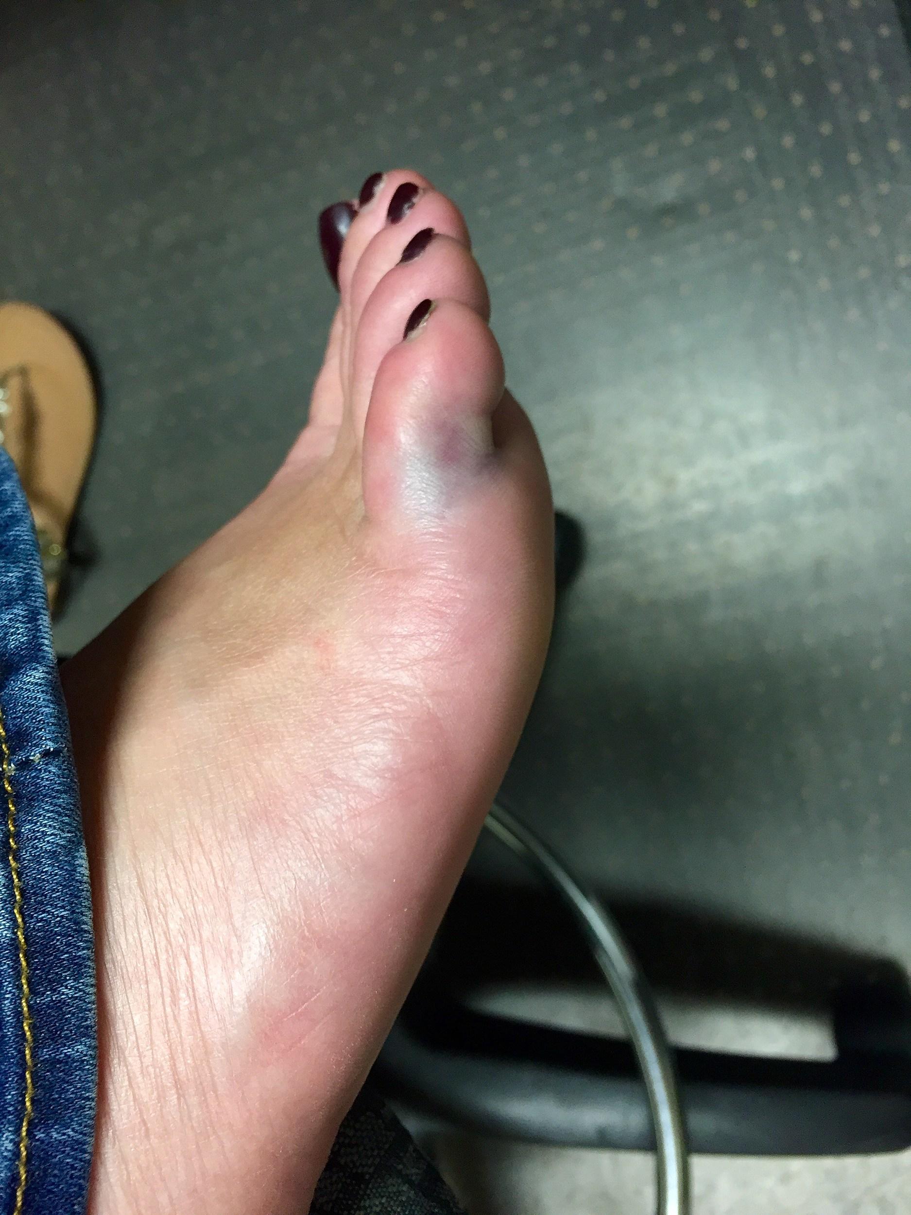 How to heal a hurt pinky toe