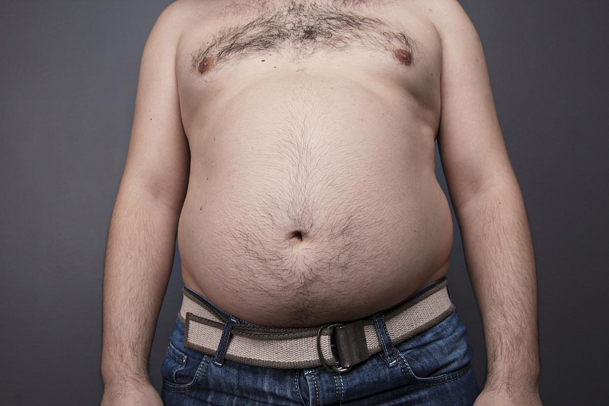 толстый живот у человека картинки при