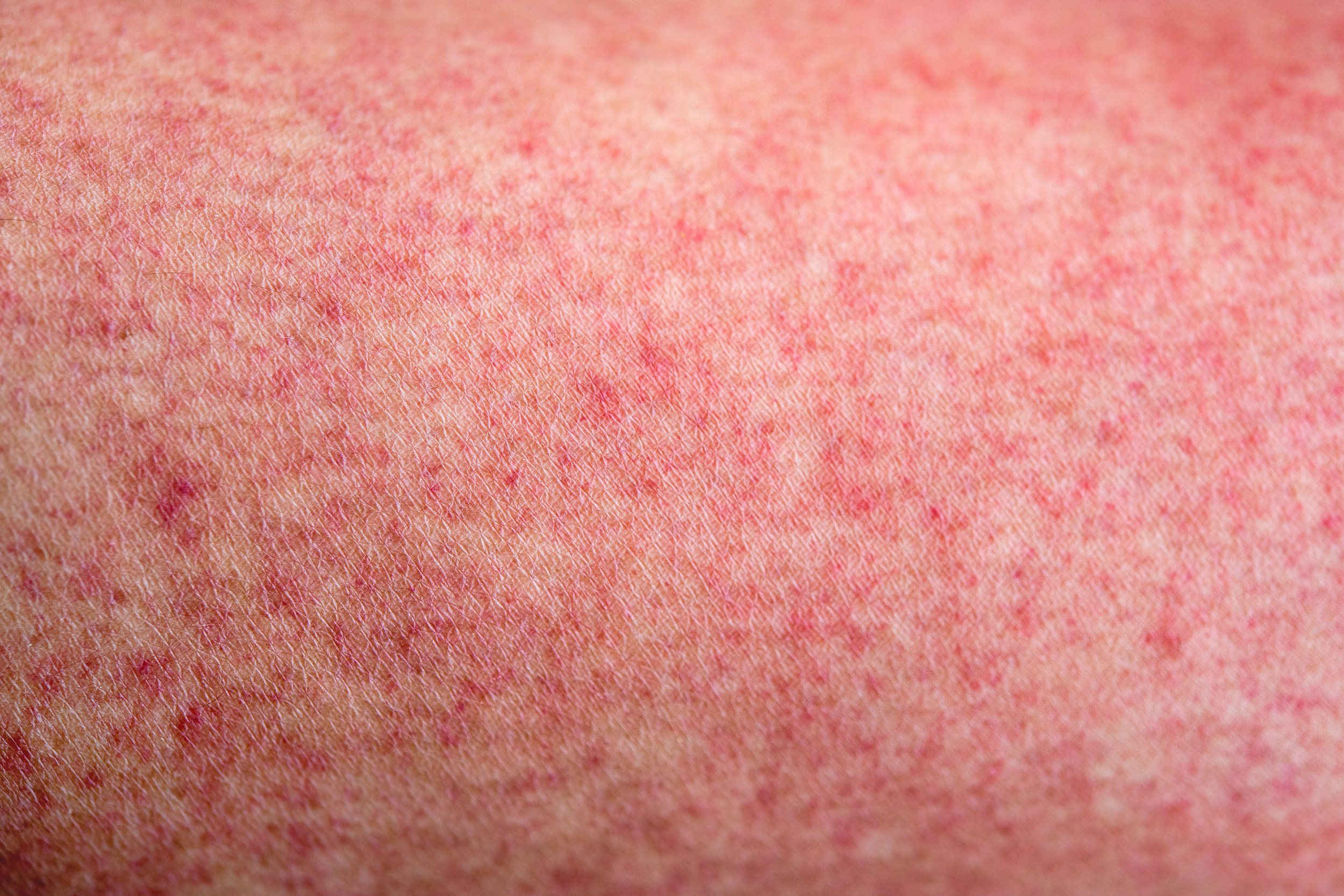 Cdc Keeping Close Watch On Measles Outbreak In Il And Wi