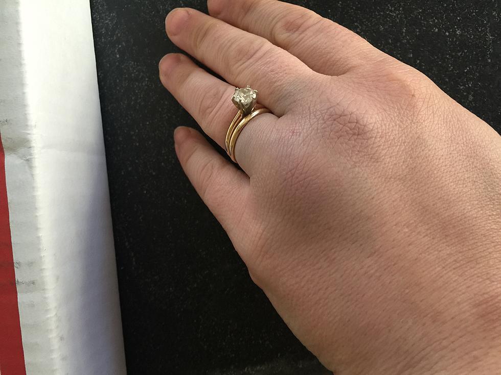 Is My Hand Broken