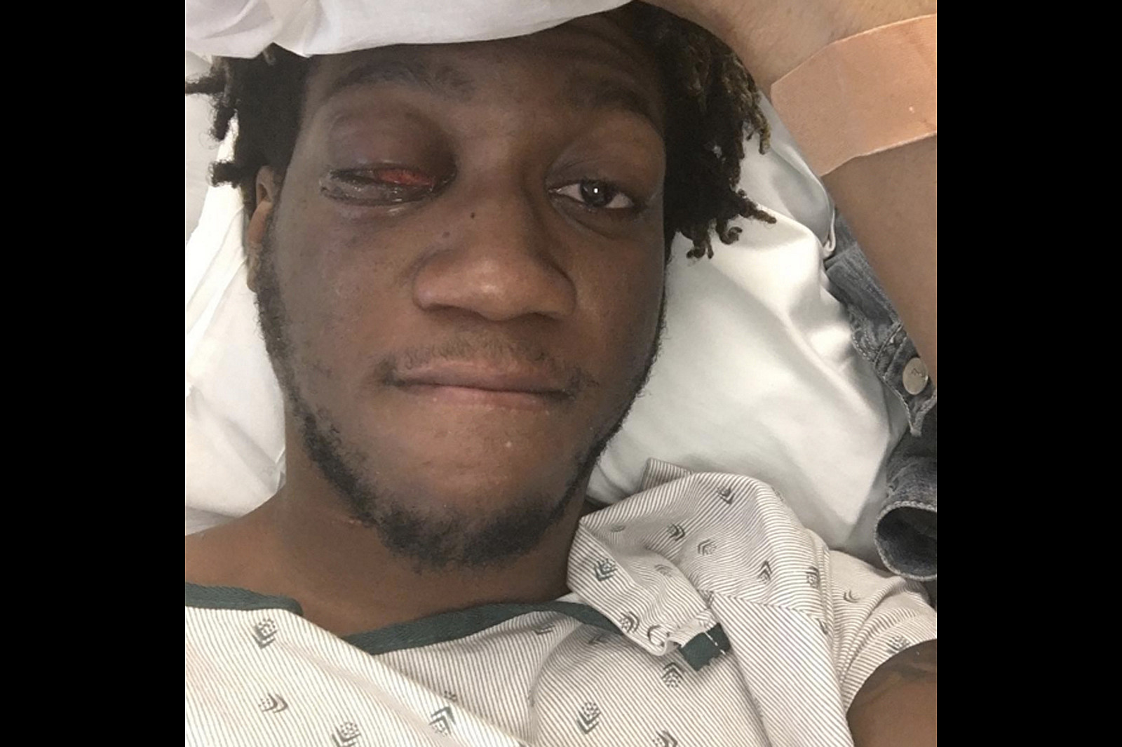 Here's a Recap of All the Rappers With Eye Issues - XXL