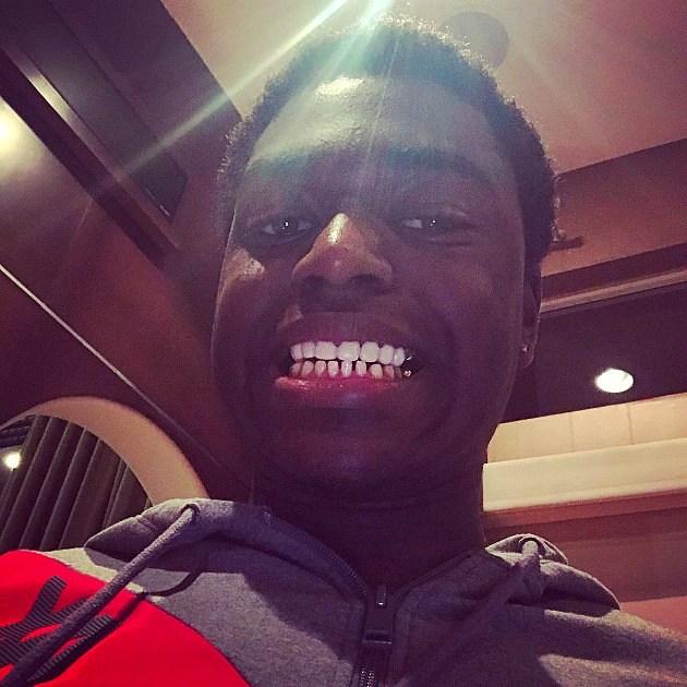 Kodak Black Gets Permanent Gold Teeth Removed - XXL