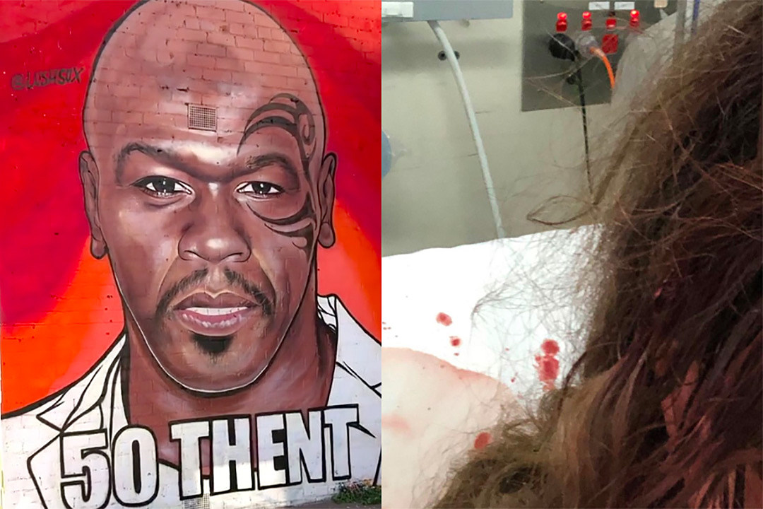 Artist Behind 50 Cent Mash-Up Paintings Hospitalized After Attack