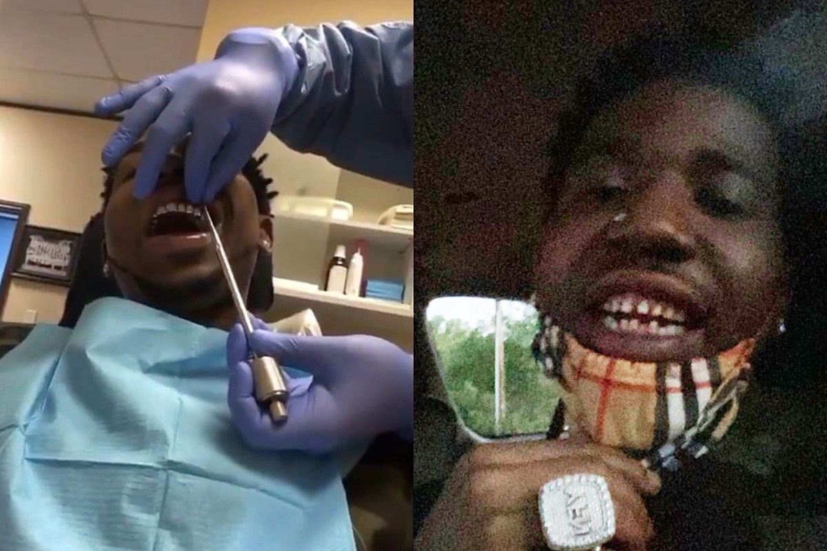 YFN Lucci Removes Permanent Grills and Shocks the Internet