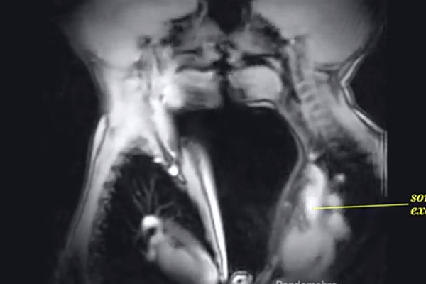 This Is What Sex Looks Like Inside An Mri Scanner Video-8276